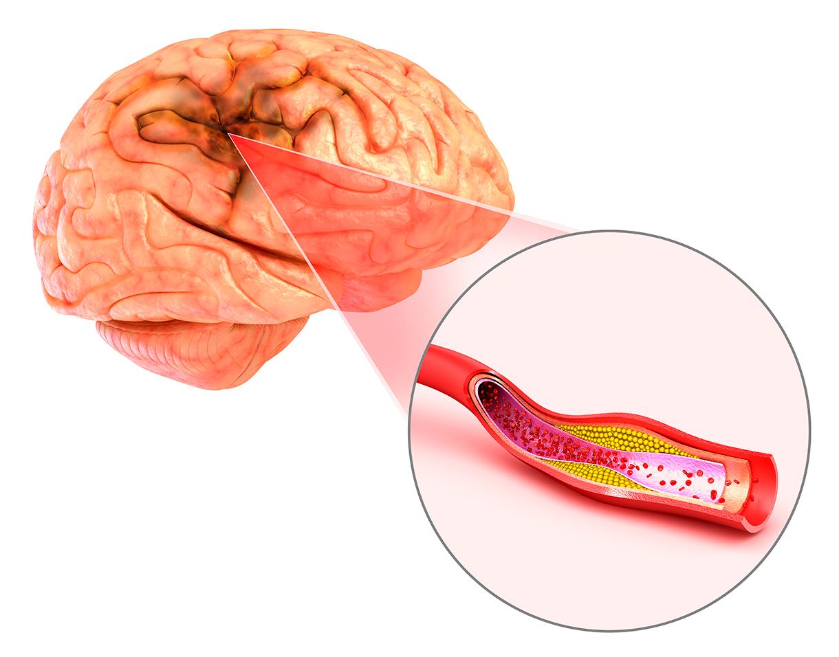 「血管性認知症」もPETとMRIで診断ができます